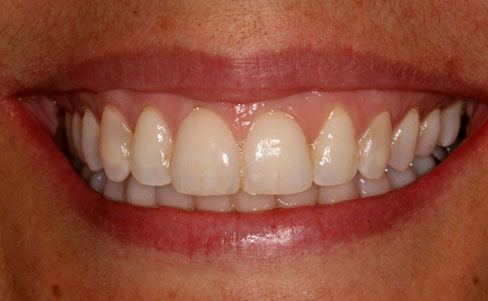 Orthodontic braces - after