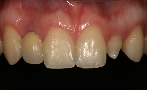 Conoid lateral incisor - before