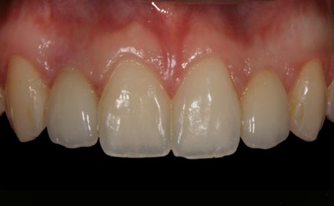 Conoid lateral incisor - after