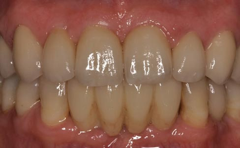 Periodontal disease - after