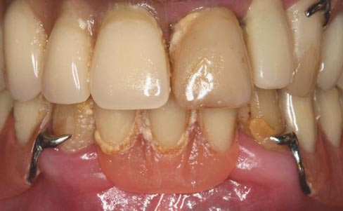 Removable dentures - before