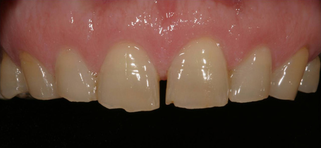 Ceramic crowns - before