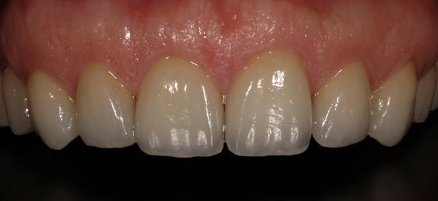 Ceramic crowns - after
